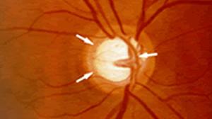 Glaucoma Toronto