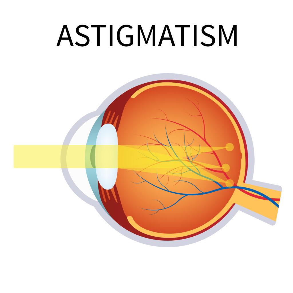 astigmatism toronto